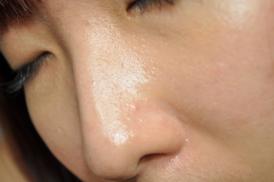 Viêm da dầu ở cánh mũi, những thông tin nhất định phải biết