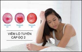 Viêm lộ tuyến cổ tử cung độ 2 chữa sớm để tránh biến chứng