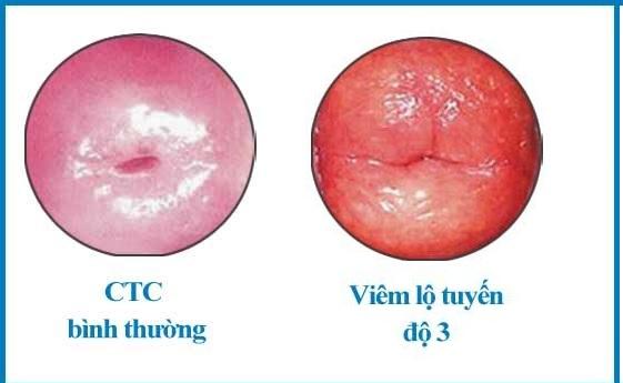 Viêm lộ tuyến cổ tử cung cấp độ 3
