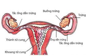 Hỏi – Đáp : Viêm nội mạc tử cung có nguy hiểm không? Có chữa được không