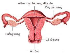 Nội mạc tử cung dày có nguy hiểm không?