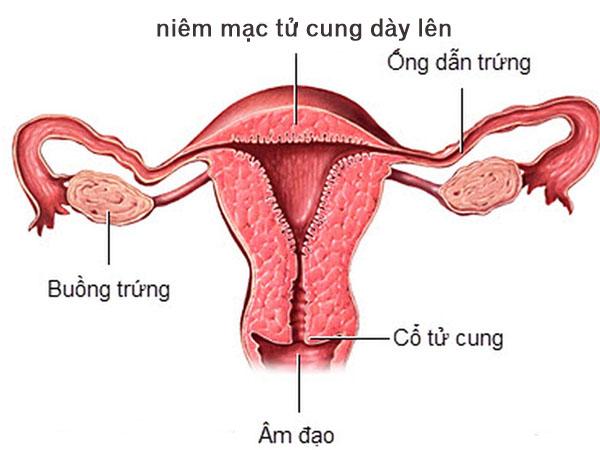 Niêm mạc tử cung dày lên có nguy hiểm không