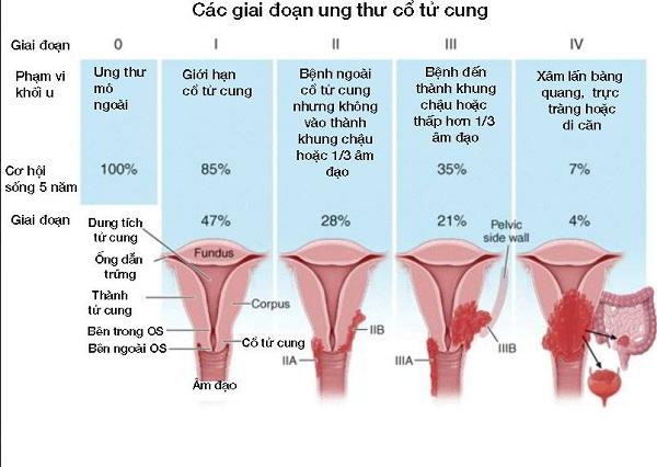 Ung thư nội mạc tử cung được chia làm mấy giai đoạn