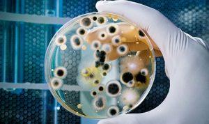 Kháng sinh đồ là gì? Tại sao phải làm kháng sinh đồ